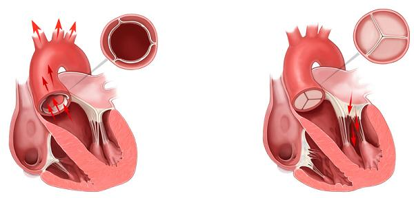 A healthy aortic valve