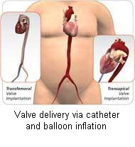 Valve delivery via catheter and balloon inflation
